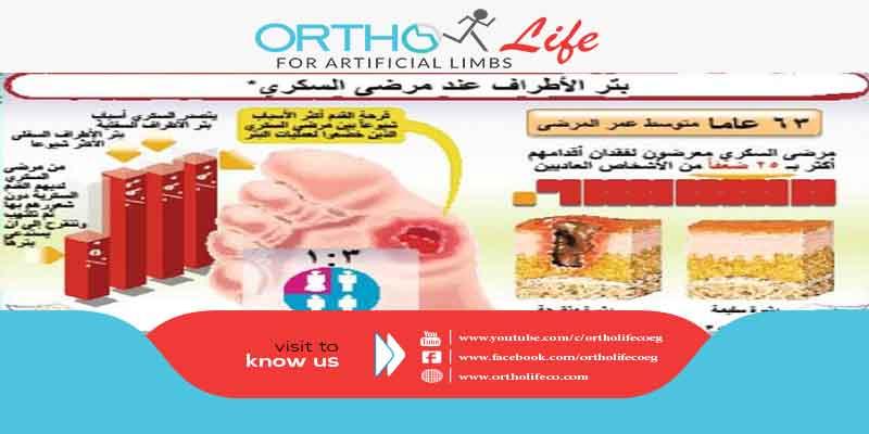 السكري وراء 90 % من حالات بتر الأطراف في جدة