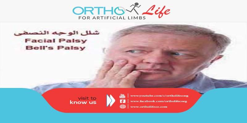 أسباب وعوامل خطر شلل العصب الوجهي