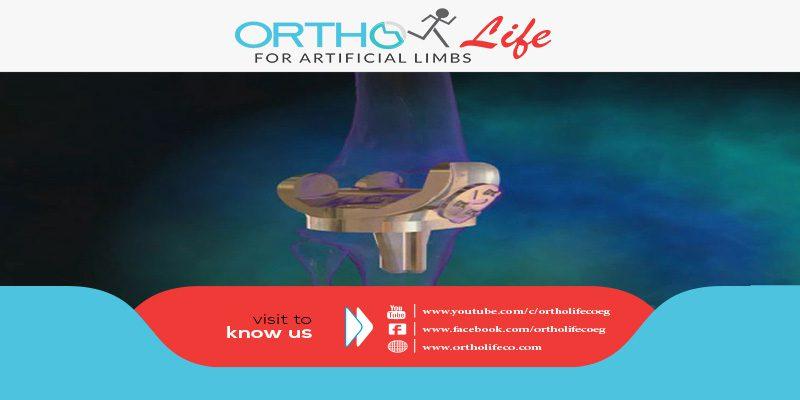 ميكانيزم الركبة الصناعية (Knee Mechanism)